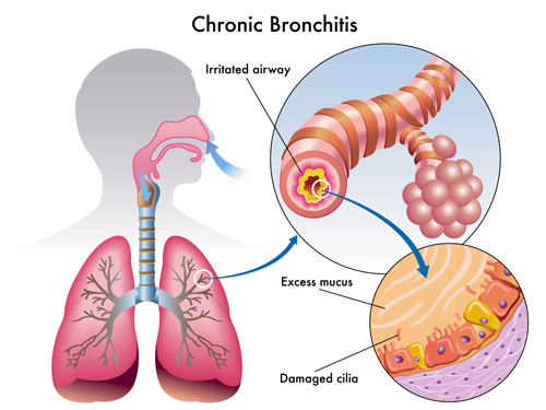 Contact the Colorado Voice Clinic if you are experiencing moderate to severe throat pains associated with bronchitis, sinus infections, or allergies. ColoradoVoiceClinic.com