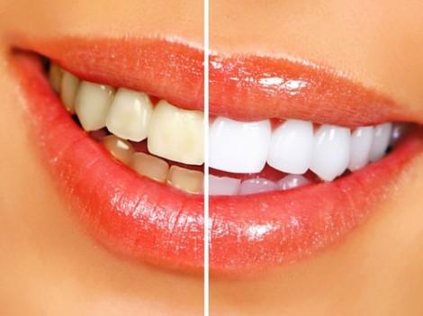 Natural Lemon + Baking Soda Teeth Whitener