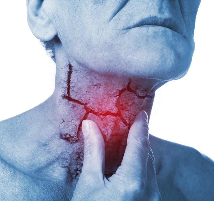 Throat Surgery